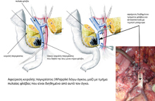 Portal vein resection and replacement with a graft