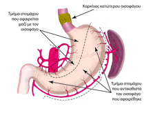 The portion of the stomach removed and the portion remaining during esophagectomy